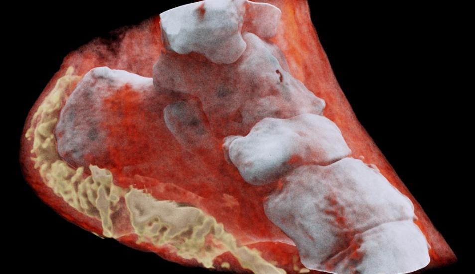 Así son las primeras imágenes de rayos X en 3D a color